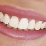 10 Foods That Are Tough On Your Teeth