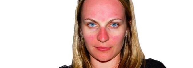 80% Of Sunscreens Are Useless Or Harmful, Says EWG