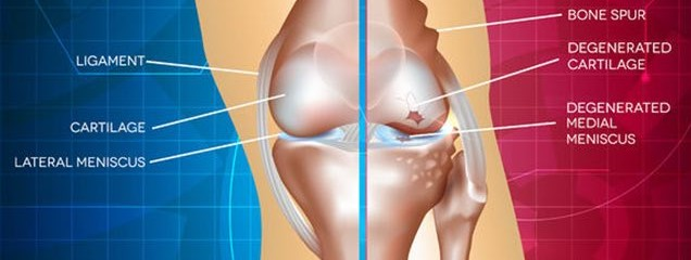 Metaphysical Meaning of Osteoarthritis & Natural Ways You Can Heal It