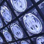 Scientists Are Able to Eliminate Alzheimer's Brain Plaque With Ultrasound Waves