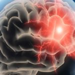Study Reports 90% of All Strokes Are Preventable: Know The Top Risk Factors